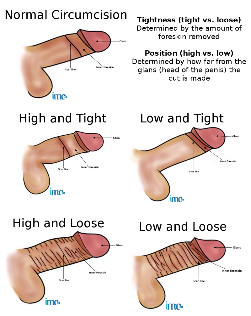 Different penis styles the world